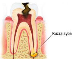Киста на корне зуба