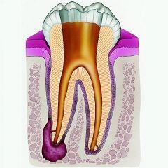 Netretirane karijes - jedan od uzroka ciste zuba