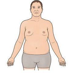 Синдром Клайнфельтера – генетическое заболевание