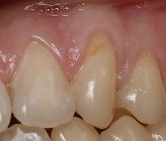 Клиновидный дефект эмали зуба