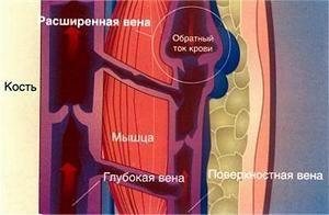 Клапаны сосудов ослабевают и не могут доставлять необходимое количество крови в определенные участки ног