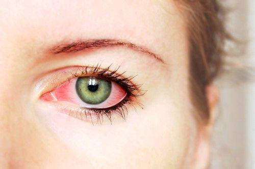 Konjuktivitis - bolest povezana sa upalnih procesa u membranama oku