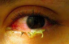 Конъюнктивит — воспаление ткани, покрывающей внутреннюю поверхность века и видимую часть склеры