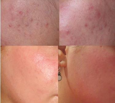 Uticaj na ožiljci od akni