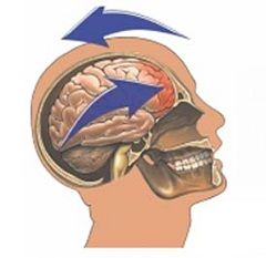 Контузия головного мозга - особо опасный вид контузии