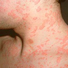 Цель лечения крапивницы - определение и устранение аллергена