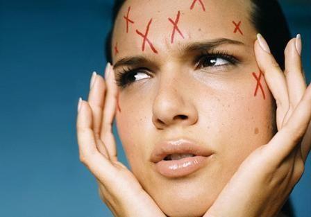 Prednosti laser terapija