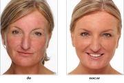 Лазерное удаление купероза на лице