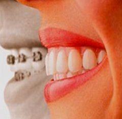 Nosač sistem - metoda liječenja malokluzija