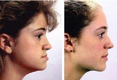 Ortodont - specijalist u liječenju malokluzija