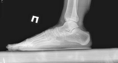 Lukova stopala: uzdužne i poprečne
