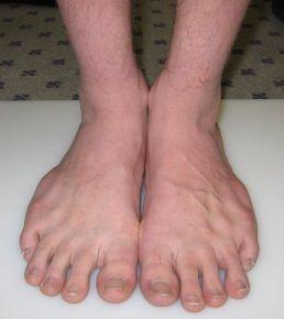 Uzdužne-poprečno Flatfoot