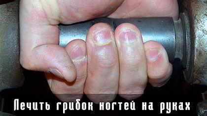 Лечить грибок ногтей на руках