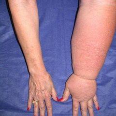 Limfedem - otekanje mehkih tkiv