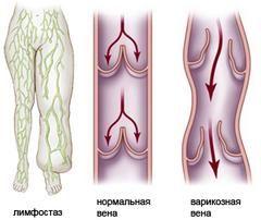 Huda otekanje in zadebelitev okončin v lymphostasis