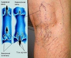 Возникает болезнь вследствие застоя крови в венах и является усложнением варикозного расширения вен
