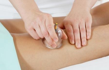 Баночный массаж – это процедура воздействия вакуумом на кожу человека