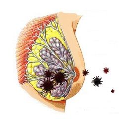 Мастит - воспаление молочной железы