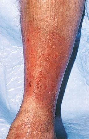 Изменения в кожных покровах вызвано нарушением кровообращения в ногах