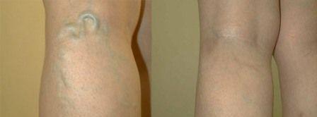 Хирургический метод лечения заключается в удалении поврежденных участков вен