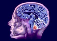 МРТ головного мозга2