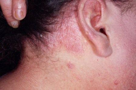 Псориаз головы и эффективное лечение народными рецептами