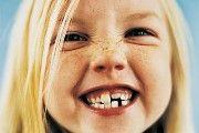 Malocluzie de dinți