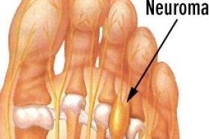 Mortons neurom