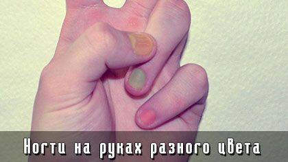 Ногти на руках разного цвета