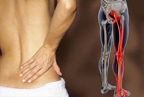 Bol u leđima daje na druge organe