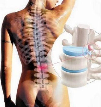 Osteohondroza - uzrok bolova u leđima