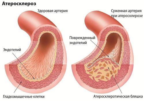 Razvoj ateroskleroze v žilah