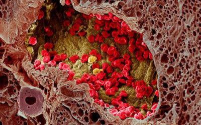 В кости идут метастазы из первичных очагов – почек, молочной, предстательной железы, саркомы Юинга