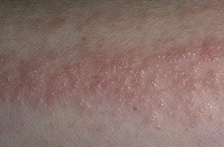 Аллергический дерматит проявляется даже при очень кратком воздействии аллергена
