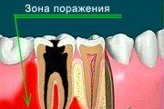 osteomielit-cheljusti