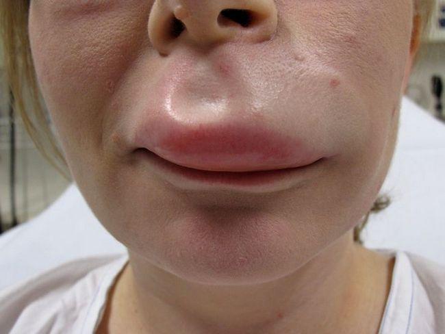 Отёк Квинке на верхней губе у женщины