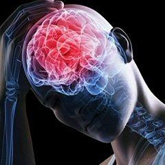 Сильные головные боли - один из симптомов отека мозга