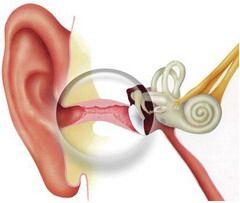 Отит — воспаление среднего уха