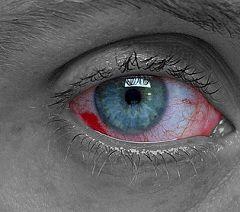 Покраснение и отек слизистой оболочки - симптомы ожога глаза