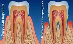 Увеличение глубины зубодесневых карманов - симптом пародонтита