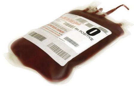 transfuziju krvi pomaže akni vrlo efikasno