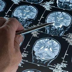 Metode de diagnostic și tratament al fracturilor bazei craniului