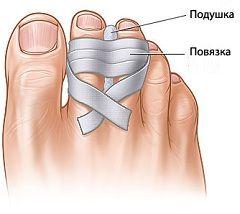 Metodele de tratament a fracturilor de deget de la picior