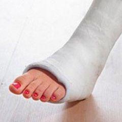 Metode de tratare a fracturii piciorului