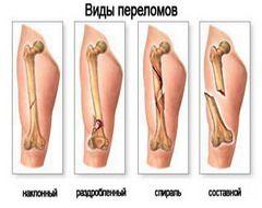 Tipuri de fracturi osoase