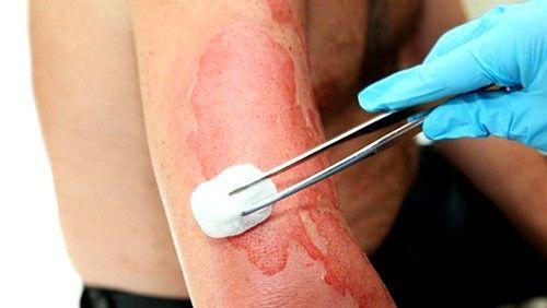 Ожоги, полученные вследствие воздействия на кожу жидкой кислоты или щелочи, покрываются струпной коркой