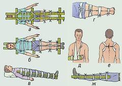 anvelope cu suprapunere ca un prim ajutor pentru fracturi