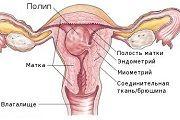 placentarnuy-polip