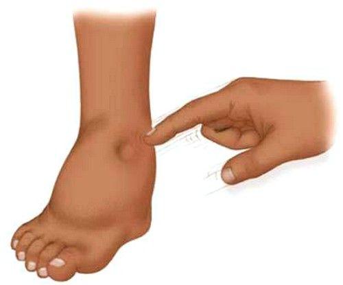 Krčne žile lahko povzroči otekanje na eni nogi