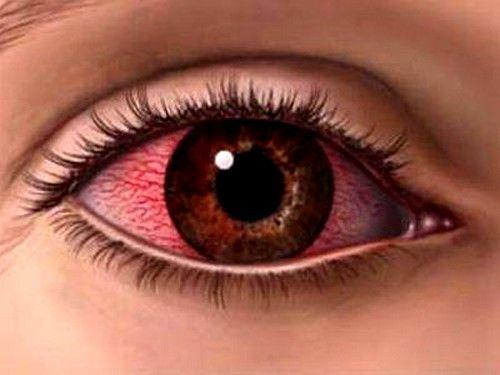 Zaraznih bolesti pogled može dovesti do suzenje